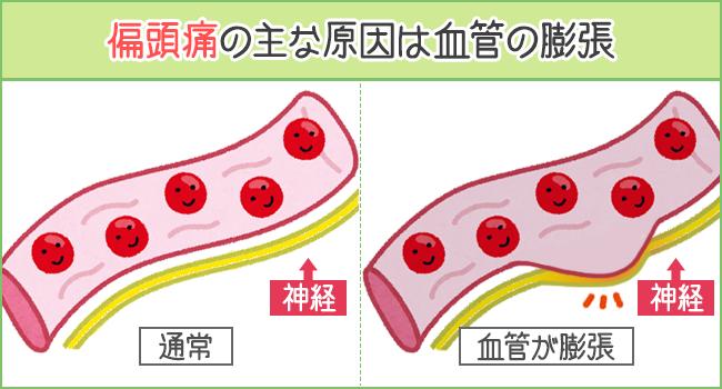 偏頭痛の主な原因は血管の膨張