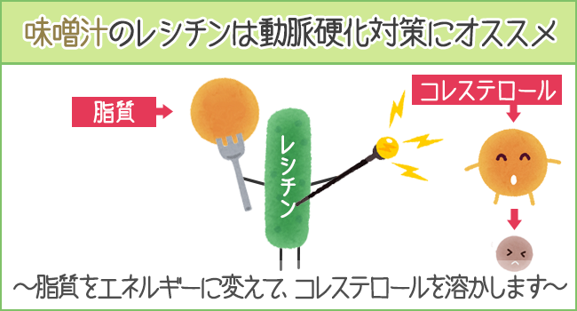 味噌汁のレシチンは動脈硬化対策にオススメ